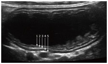 Abdominal Ultrasonography Of The Pediatric Gastrointestinal Tract