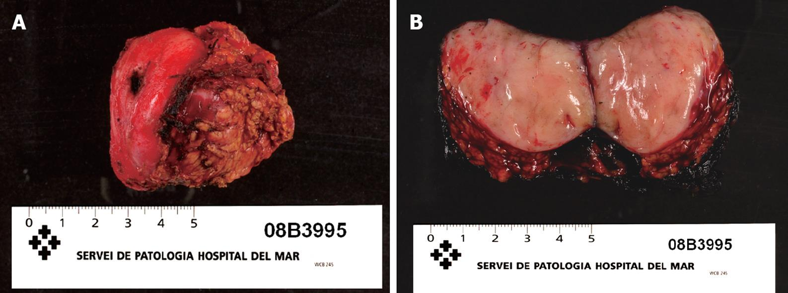 Resection of the uncinate process of the pancreas due to a ... Cancer Of Uncinate Process Of Pancreas Icd 10