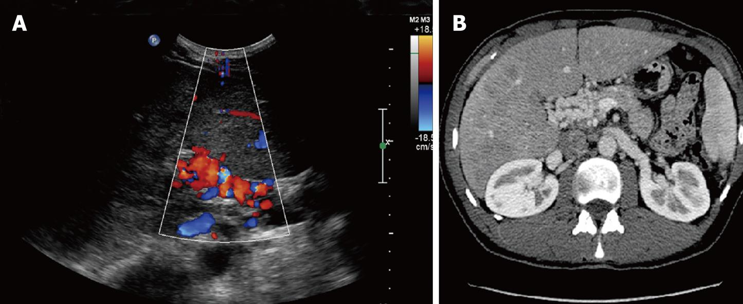Portal Vein Thrombosis Insight Into Physiopathology Diagnosis And