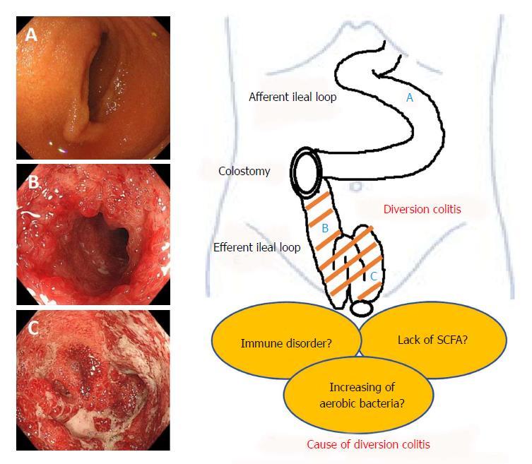 Diversion colitis and pouchitis: A mini-review