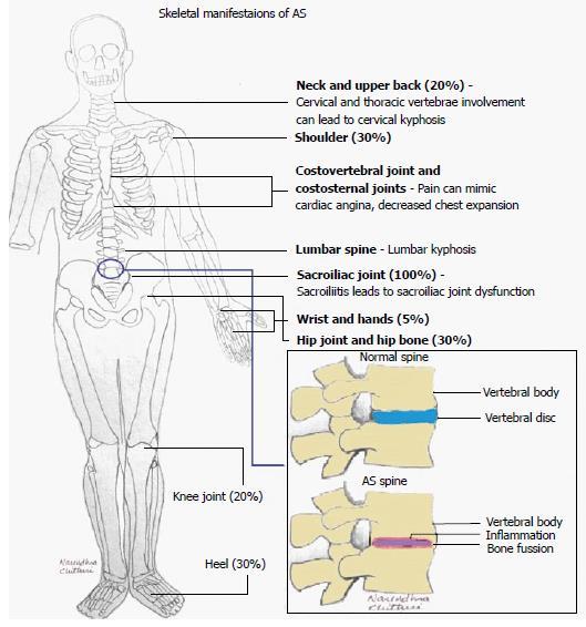 ankylosing spondylitis gene