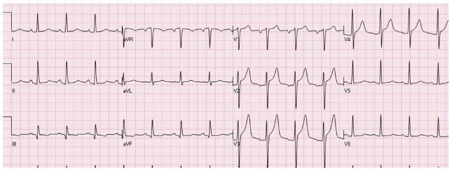 STsegment Elevation Distinguishing ST Elevation Myocardial New Ecg Pattern