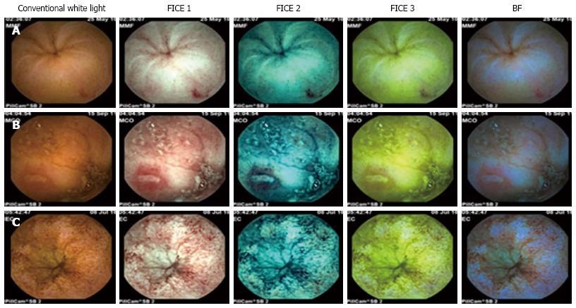 Virtual Chromoendoscopy In Small Bowel Capsule Endoscopy