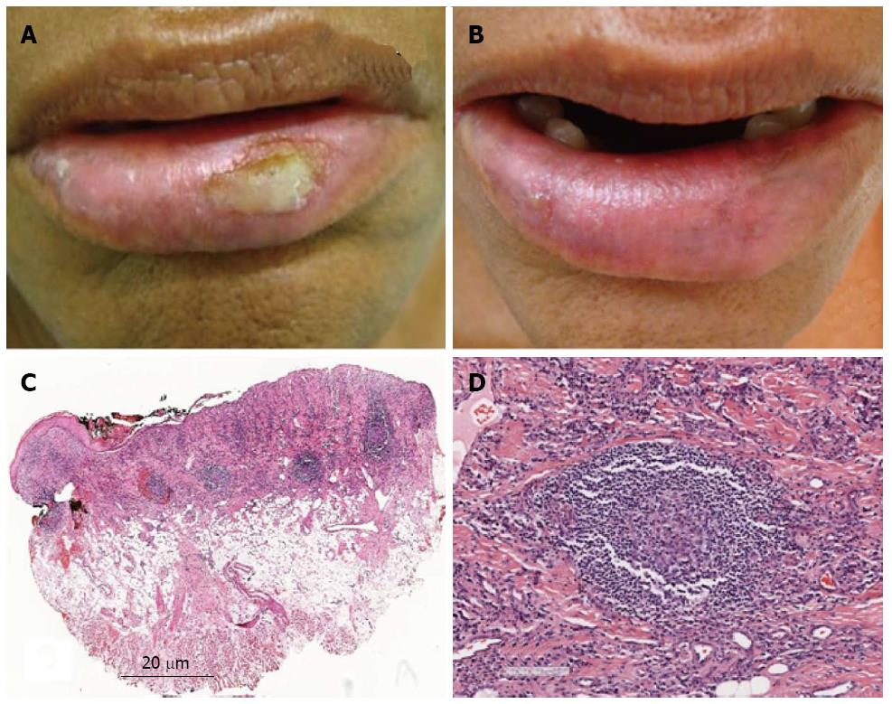Actinic prurigo of the lip: Two case reports