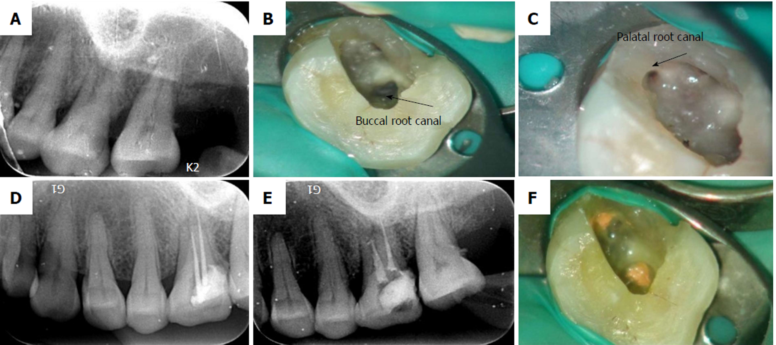 Endodontic management of the maxillary first molars with two