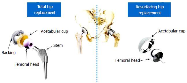 Biotribology of artificial hip joints