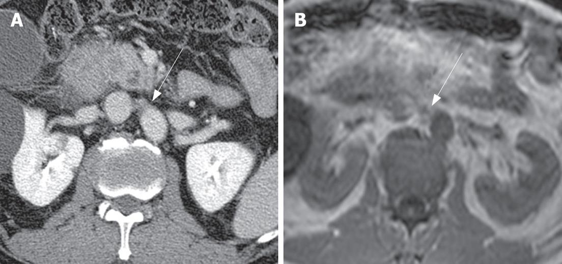 Comparison Of Ct And Mri For Presurgical Characterization Of