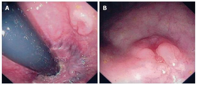 Primary Squamous Cell Carcinoma Of The Rectum An Update And Implications For Treatment