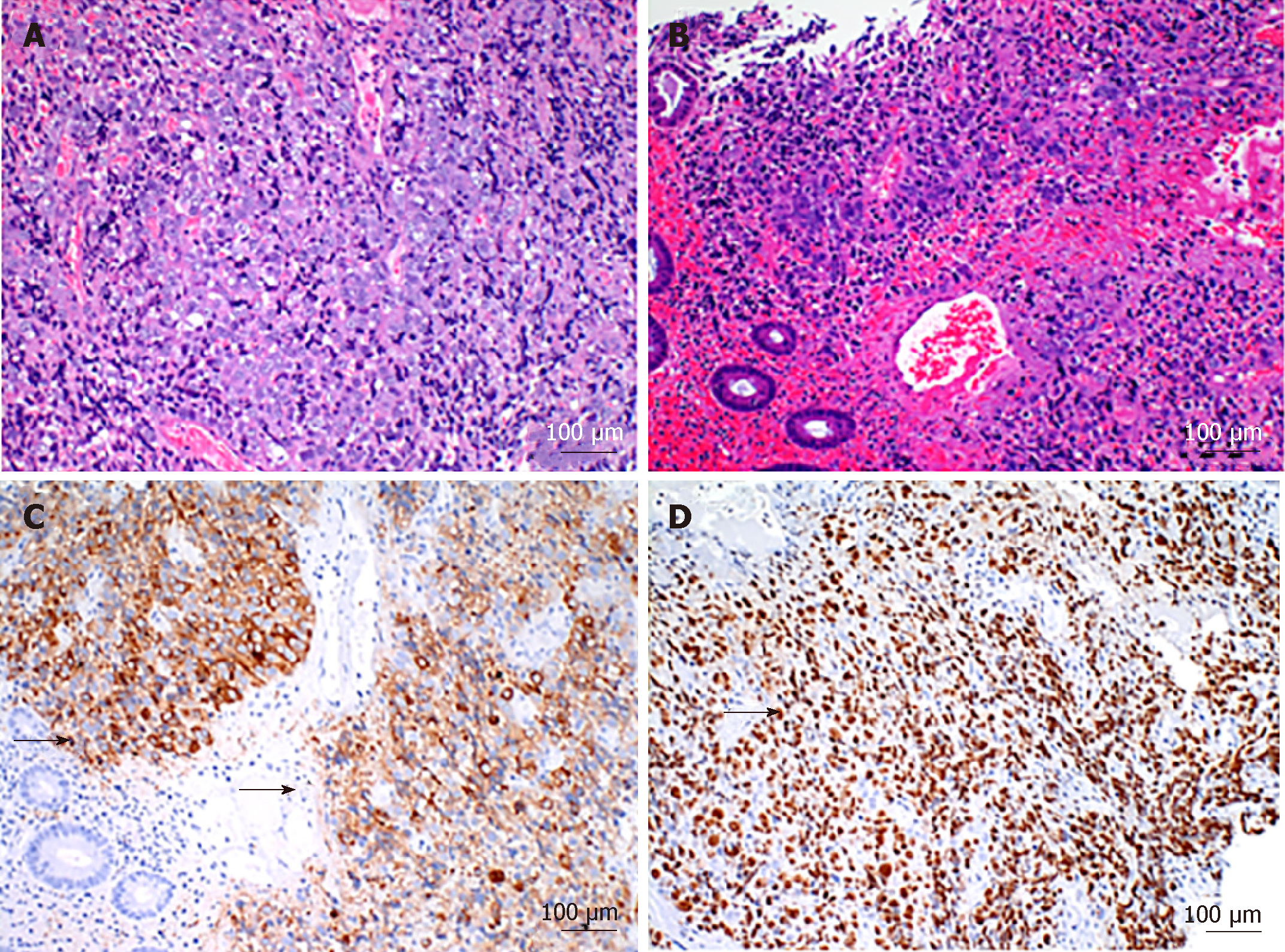 Colorectal Neuroendocrine Carcinoma A Case Report And Review Of The Literature