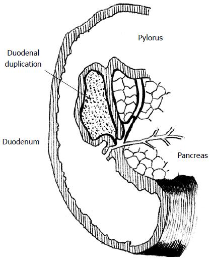 Alimentary Tract Duplications In Newborns And Children Diagnostic