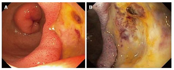 Two Case Reports Of Acute Upper Gastrointestinal Bleeding From