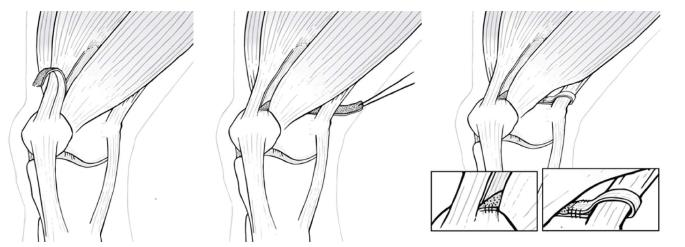 Failed Medial Patellofemoral Ligament Reconstruction Causes And