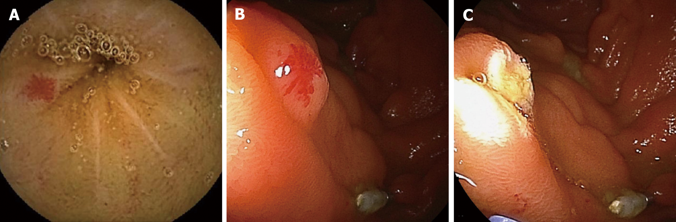 Diagnosis and therapeutic strategies for small bowel vascular lesions