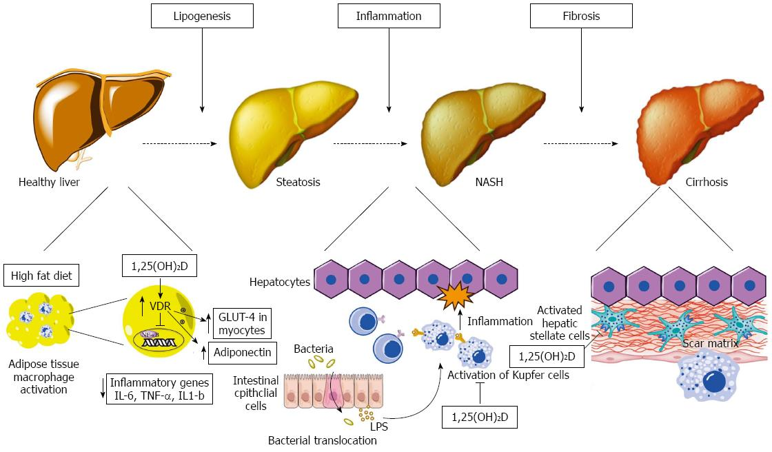 Vitamin d a new player in non alcoholic fatty liver disease effects of vitamin d on hepatocytes and non parenchymal hepatic cells hepatic stellate cells kupffer cells in non alcoholic fatty liver disease ccuart Choice Image