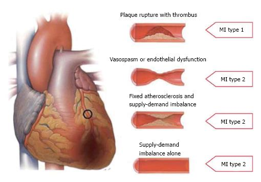 Recent Advances In The Diagnosis And Treatment Of Acute Myocardial