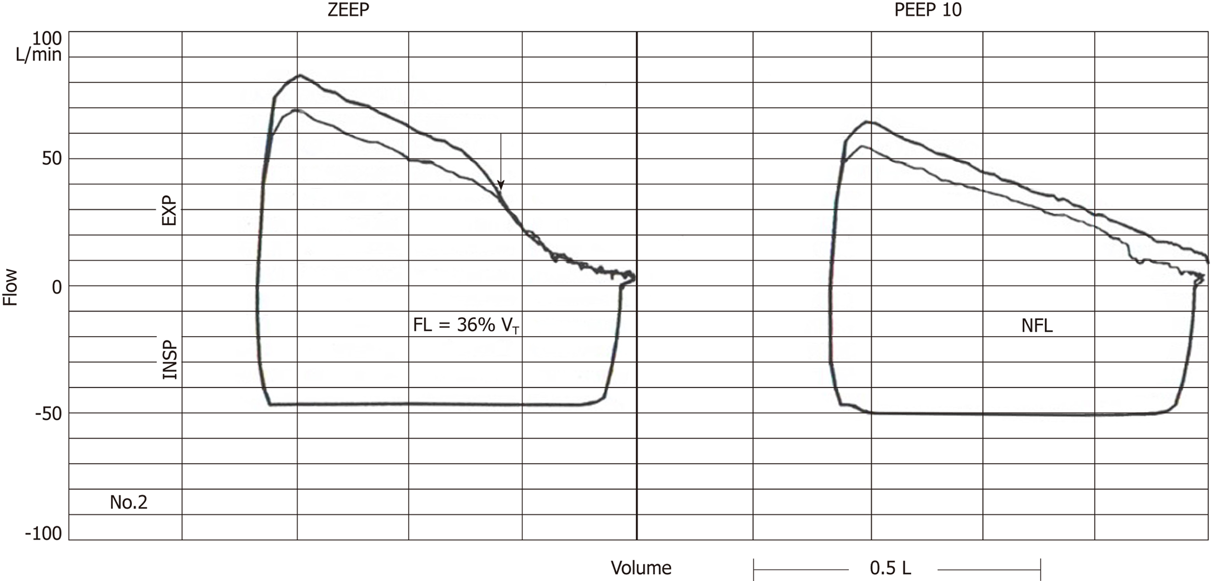 Expiratory flow-limitation in mechanically ventilated