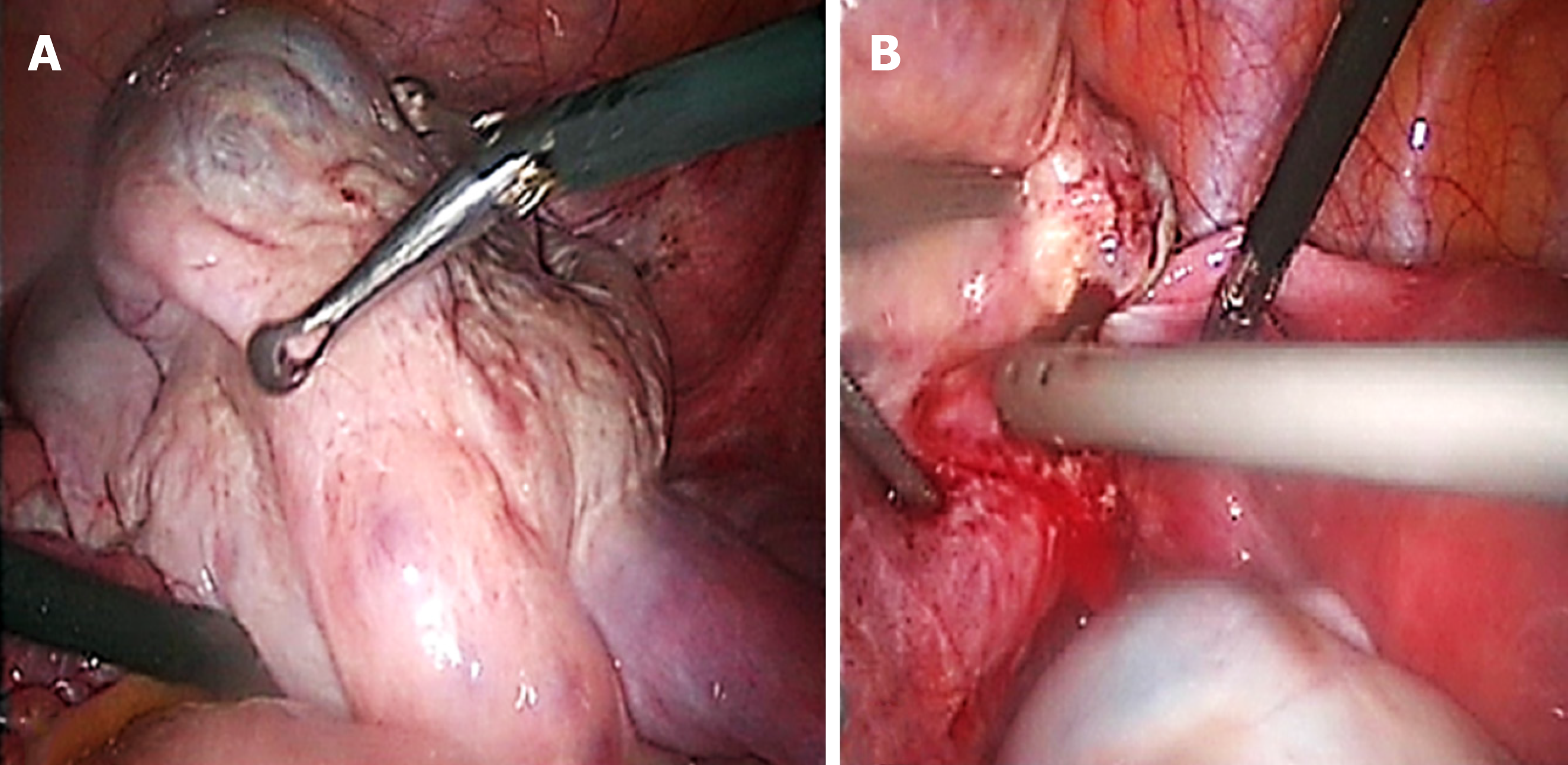 Association Of Endometrioma With Ovarian Teratoma And Mucinous Cystadenoma In A Patient Diagnosed With Endometriosis A Case Report