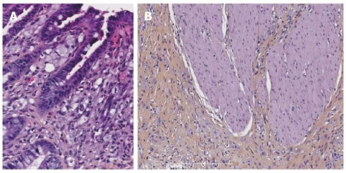 Signet Ring Cell Carcinoma Of The Stomach Impact On Prognosis And Specific Therapeutic Challenge