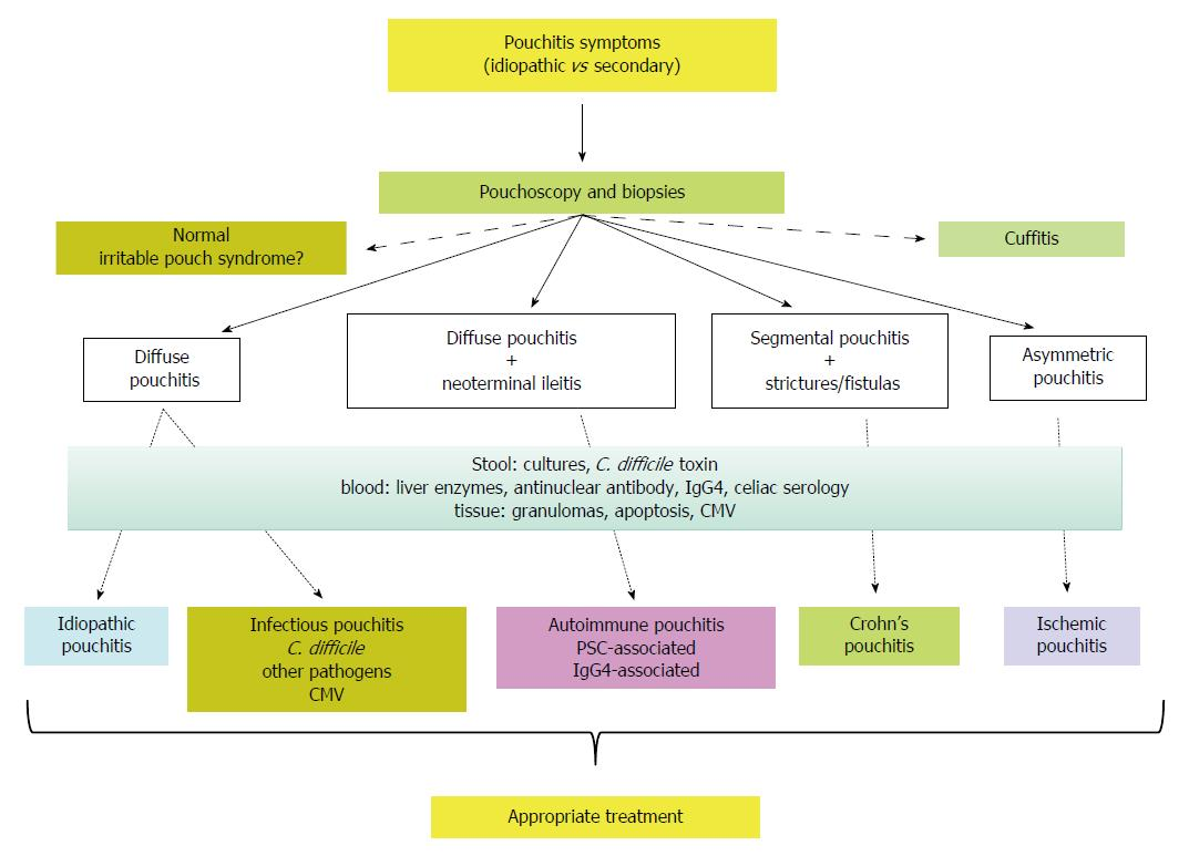 Inflammatory pouch disease: The spectrum of pouchitis