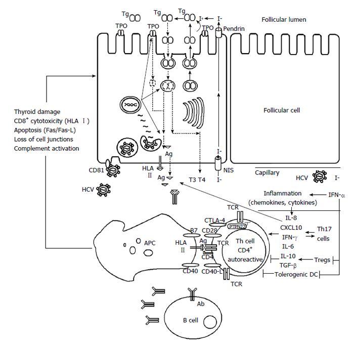 Hepatitis C virus infection and thyroid autoimmune disorders