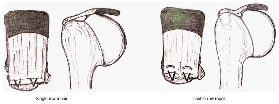 Rotator cuff tears: An evidence based approach