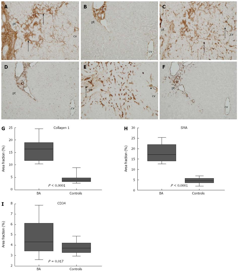 Myofibroblastic cell activation and neovascularization