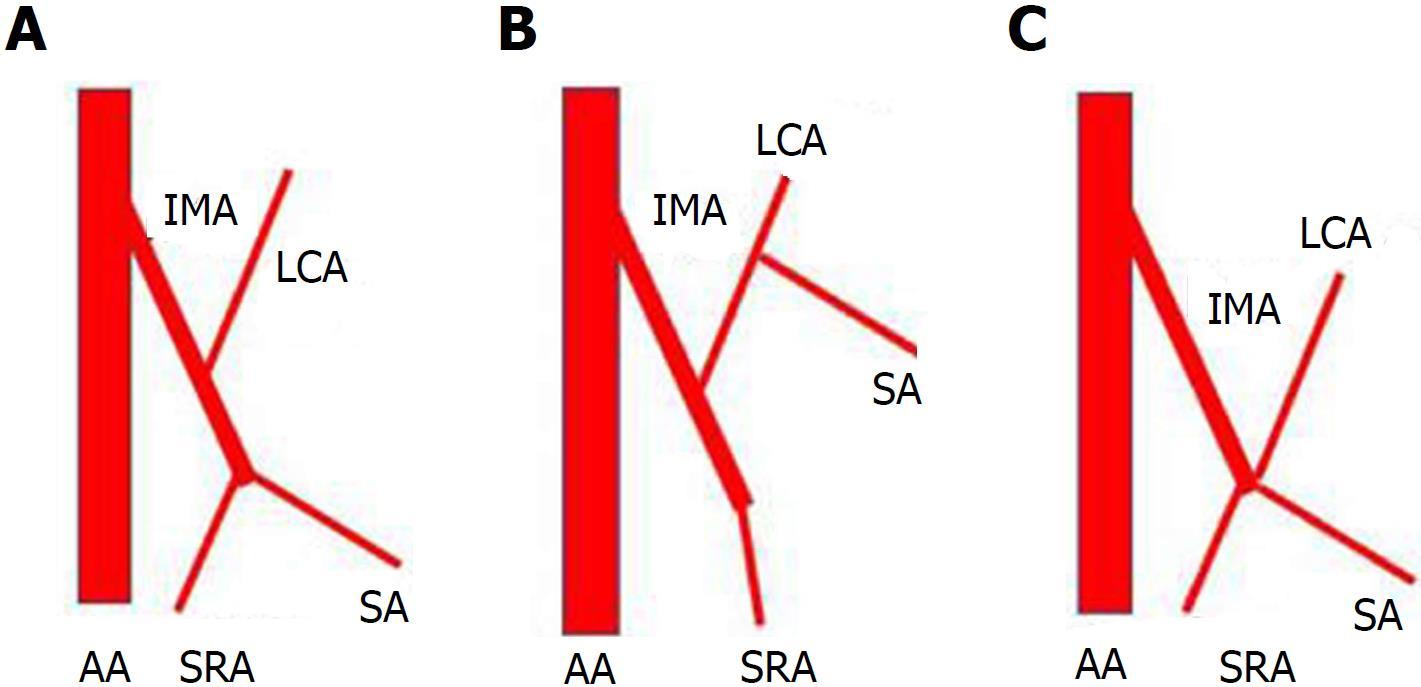 Vascular Anatomy Of Inferior Mesenteric Artery In Laparoscopic