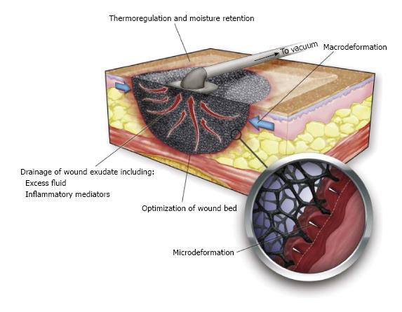 evidence based review of negative pressure wound therapy