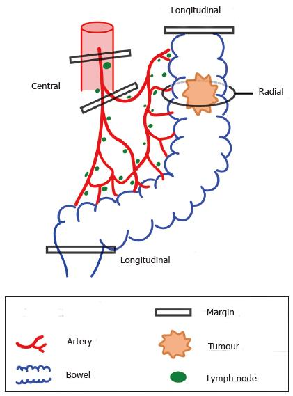 colorectal cancer in lymph nodes