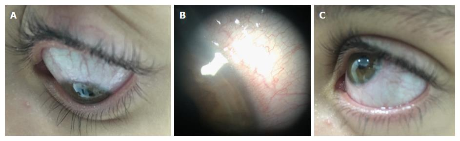 8c10f6b8839 Ophthalmic manifestations in patients with inflammatory bowel ...