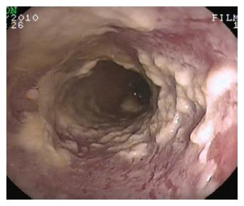 Esophagitis And Its Causes Who Is Guilty When Acid Is