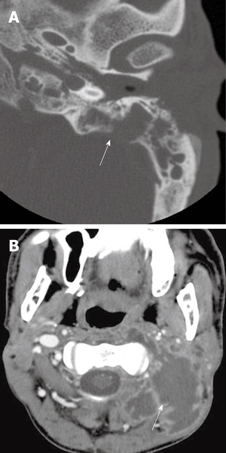 Computed tomography imaging of acute neck inflammatory processes