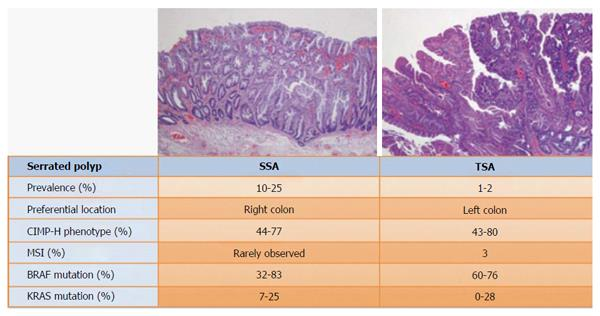 Serrated Colorectal Cancer Molecular Classification Prognosis And Response To Chemotherapy