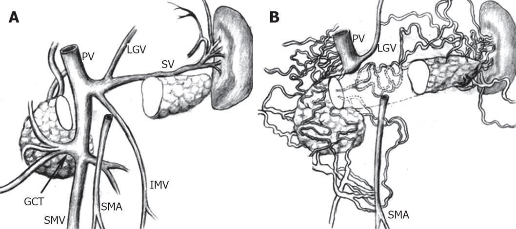 Ischemic colitis due to obstruction of mesenteric and splenic veins ...