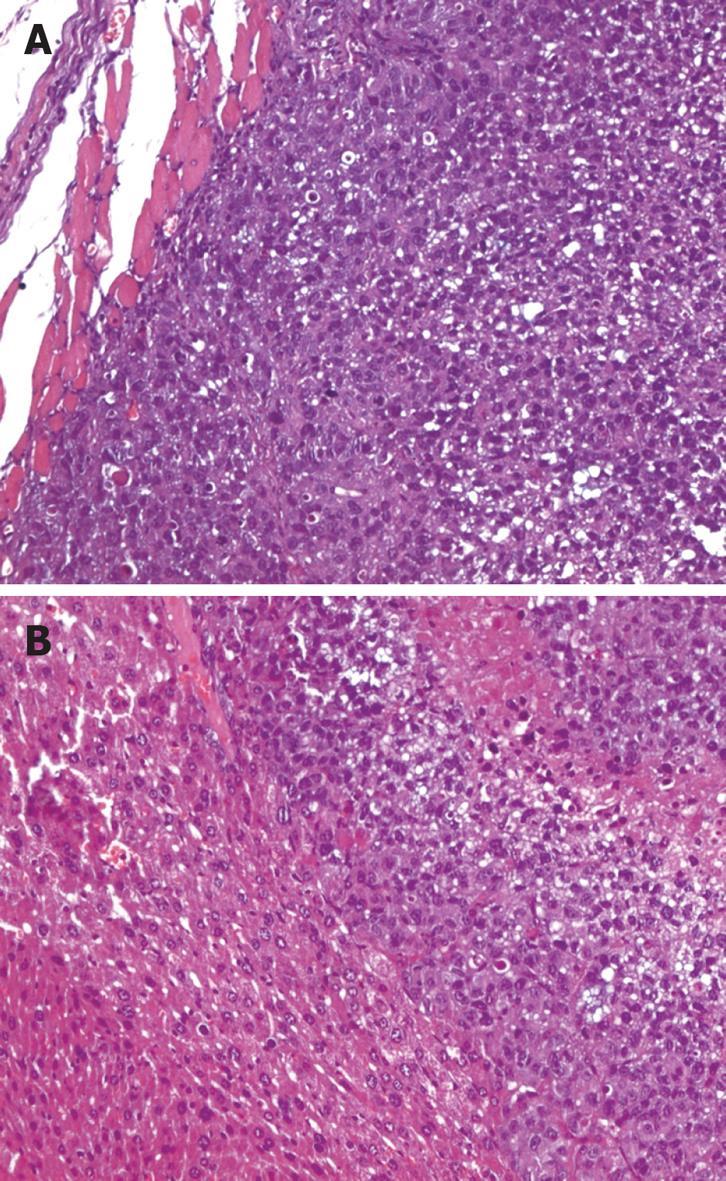 Prediction of gastric cancer metastasis through urinary ...