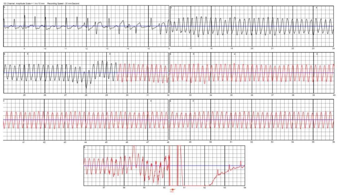 Wearable Cardioverter Defibrillator Bridge Or Alternative To