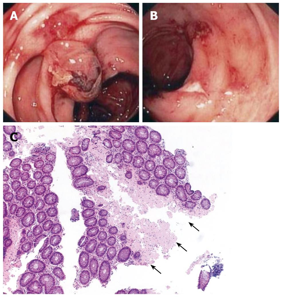 Rectal Bleeding As A Presenting Symptom Of Al Amyloidosis And