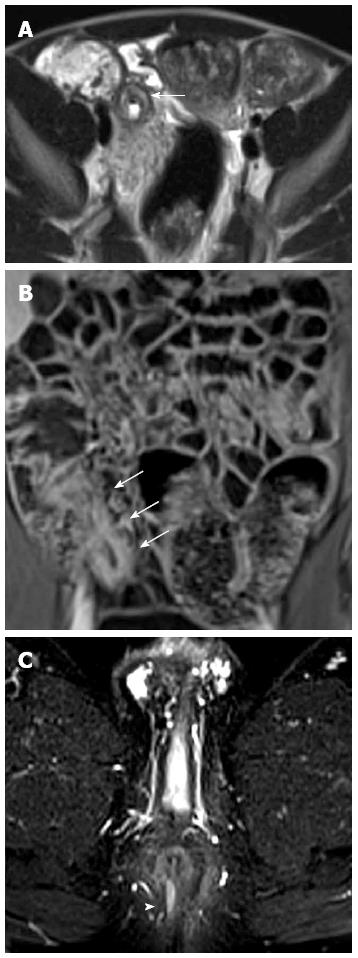 Imaging of the small bowel crohn s disease in paediatric for Colonic mural thickening