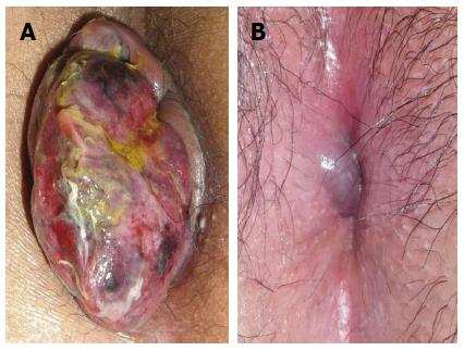 treatment of hemorrhoids a coloproctologist�s view