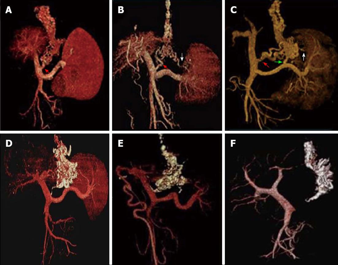 MDCT angiography to evaluate the therapeutic effect of PTVE for ...
