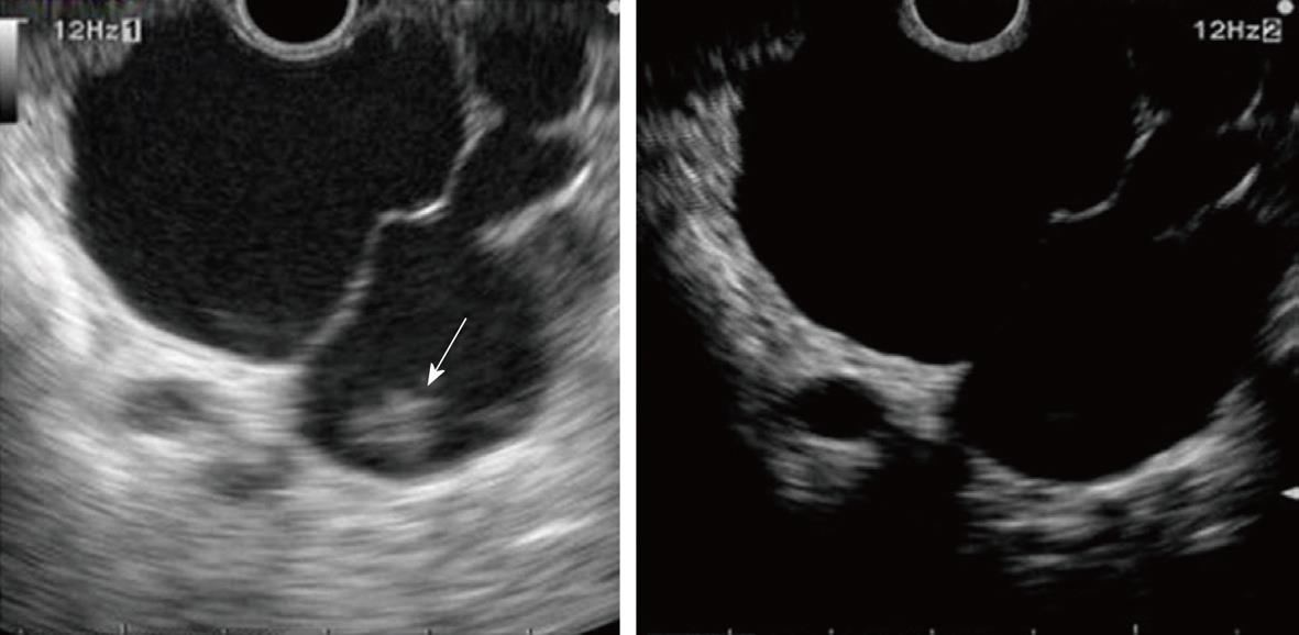 Diagnosis of pancreatic tumors by endoscopic ultrasonography for Cyst with mural nodule