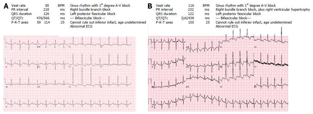 Atrial tachyarrhythmia in adult congenital heart disease