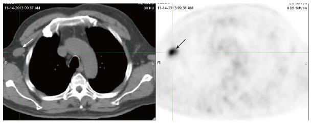 Postoperative reactive lymphadenitis: A potential cause of