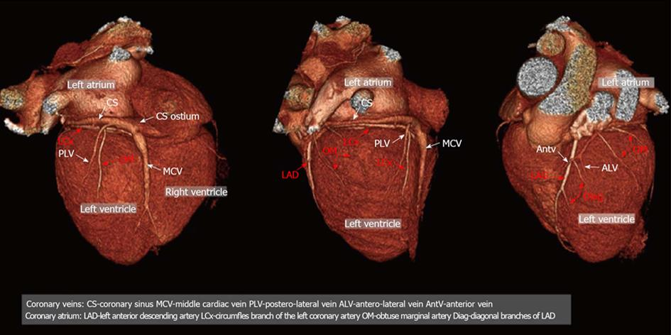Coronary Venous System In Cardiac Computer Tomography Visualization