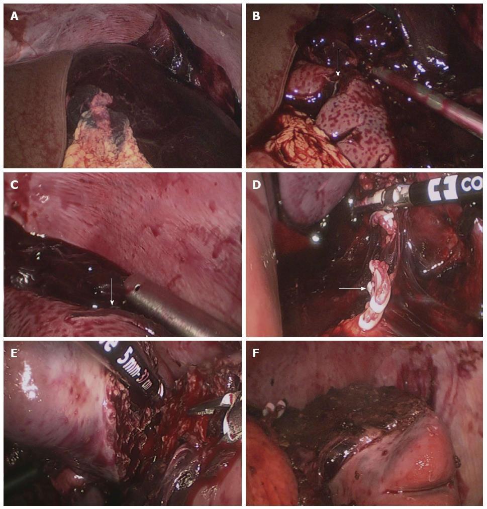 Emergency Laparoscopic Partial Splenectomy For Ruptured Spleen A