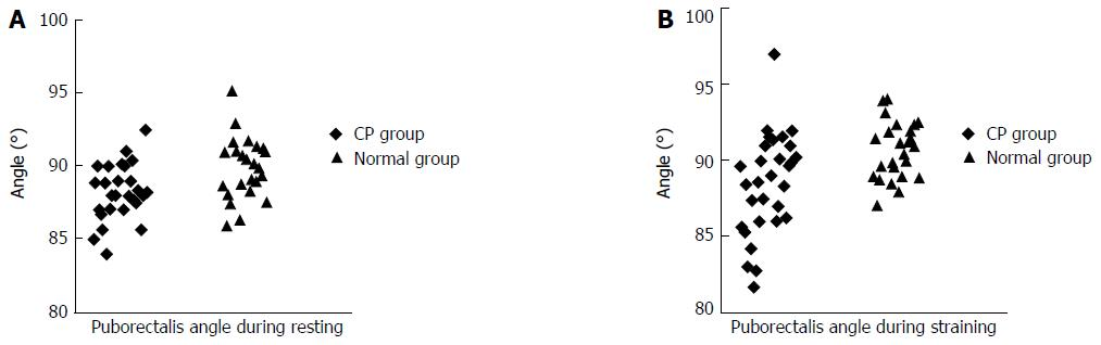 Role of three-dimensional endoanal ultrasound in assessing