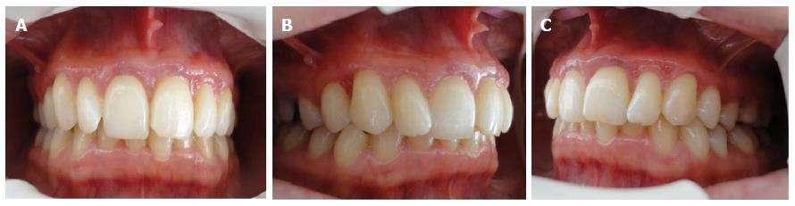 Tissue restoration after improper laser gingivectomy: A case