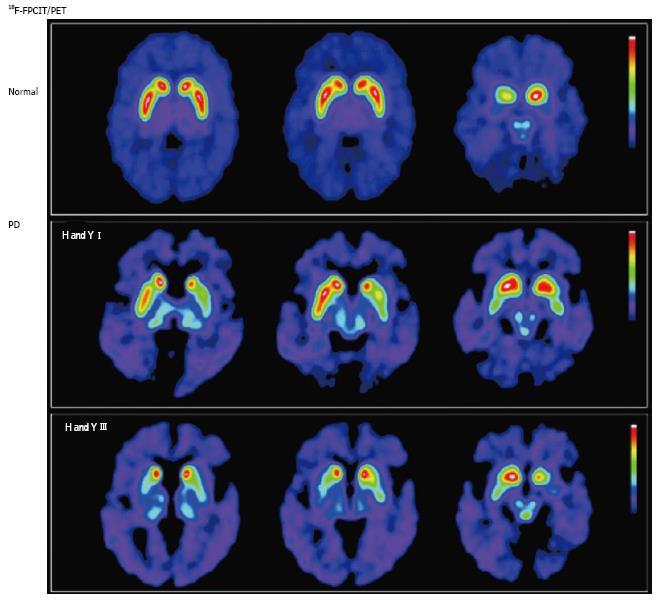 Molecular imaging of movement disorders