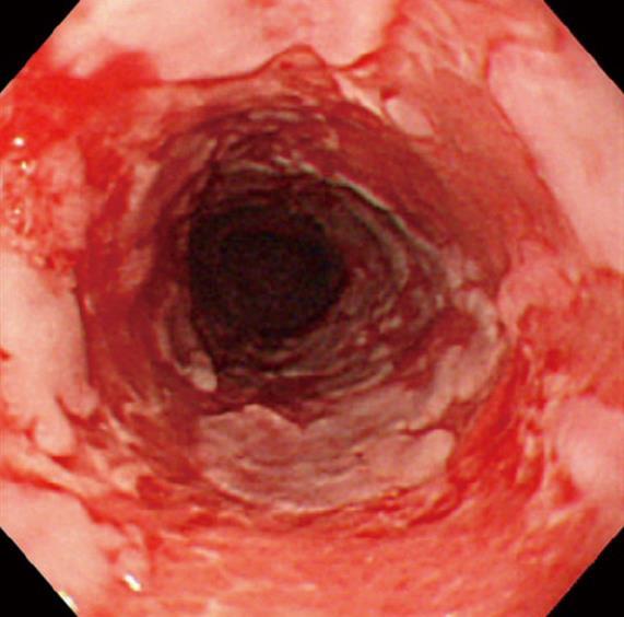 Esophagitis Dissecans Superficialis And Autoimmune Bullous