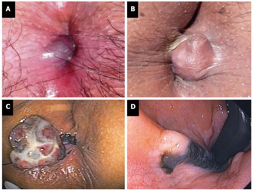 Images of anal hemorrhoids